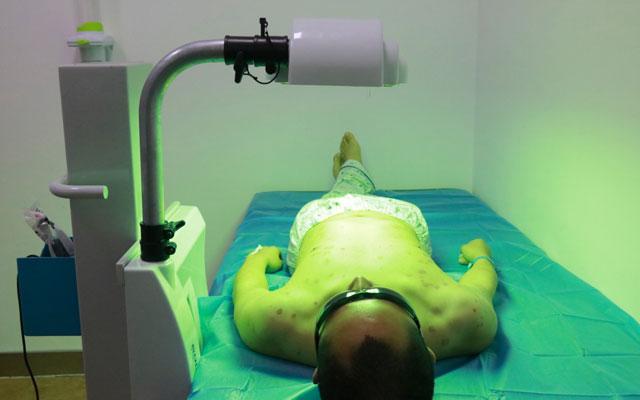 V-DⅢ光动力疗法